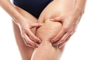 Metodi efficaci per combattere la cellulite (in base a che età hai)